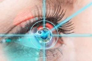 beautykredit operation augen lasern